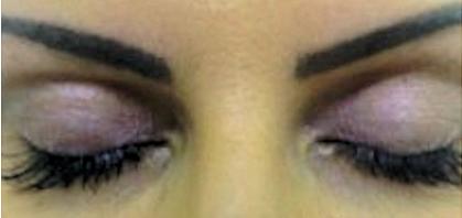 Latisse week 16                                          Visage Cosmetics client photos